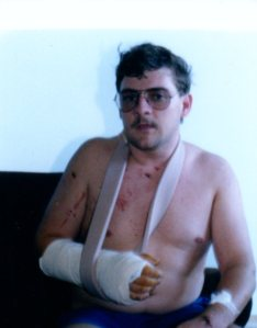 PaulBikeAccident1987001